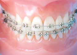 小児歯科の矯正治療